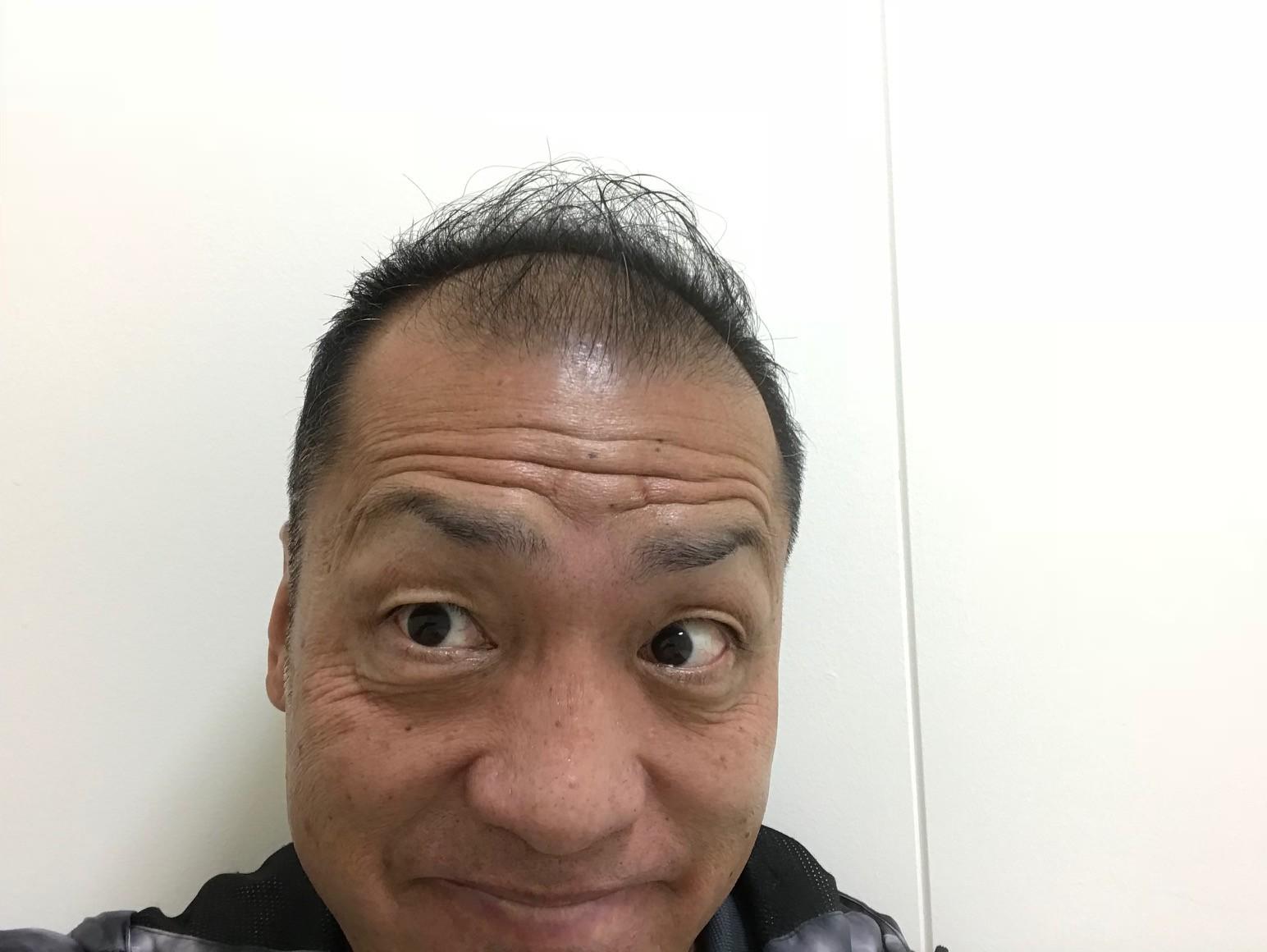 シュワルツ浅井、筋トレしても禿げません!